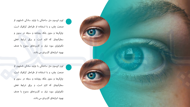 قالب-پاورپوینت-پایان-نامه-چشم-پزشکی-